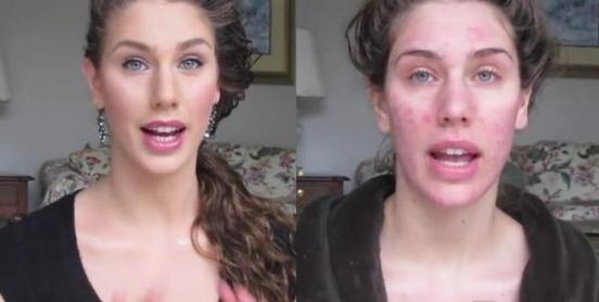 Какие средства хорошо очищают лицо