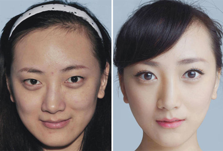 Asian Plastic Surgery NYC - Ethnic Rhinoplasty