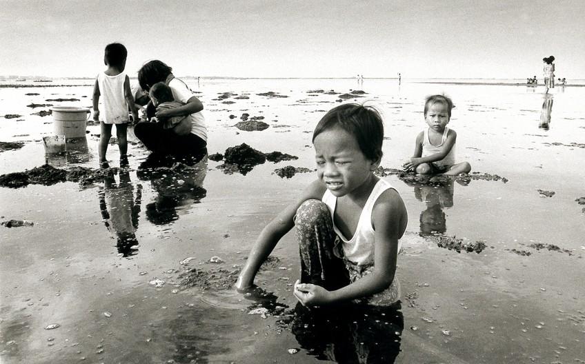 водянка яичка у ребенка фото 5 лет