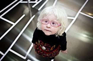 Девочка-альбинос, Валенсия, Испания. Ана Ютуральде