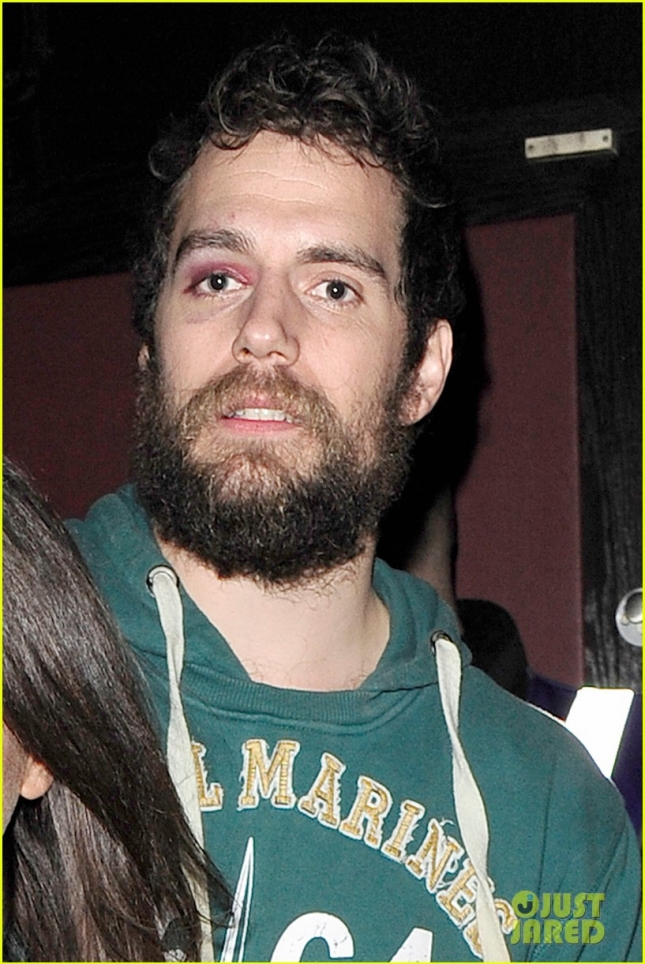 henry-cavill-black-eye-out-with-mystery-woman-04